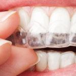 Ortodonzia Invisibile per adulto